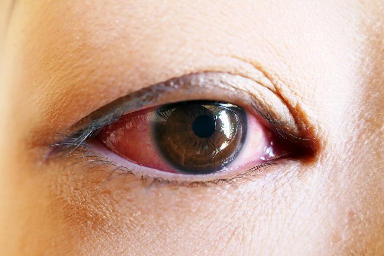 白目や結膜の充血・白目が赤い